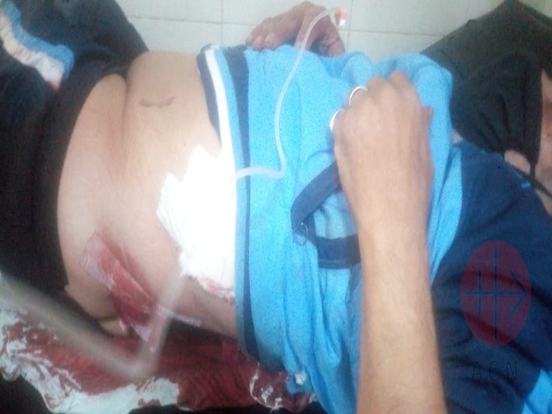 Egipto Adel Boulos Hermina was stabbed in his belly web